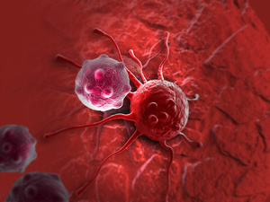 癌细胞转移、扩散前会出现啥症状?医生提醒:最常见的就是这5种