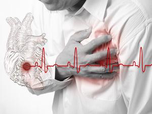 突如其来的窒息感?注意!急性心绞痛有这两个表现!