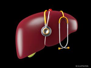 肝硬化病因