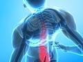 腰痛就一定是肾虚吗?腰痛跟肾虚有关吗?