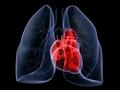 心脏病突发情况危急,发作爱挑这5段时间