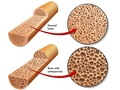 骨质疏松治疗