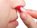 孩子流鼻血是白血病?也可能是这些原因