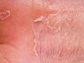 春季湿疹爆发?医生:做好4件事,皮肤安然度春!