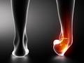 为什么你的脚会反复扭伤?