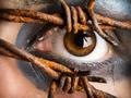 眼睛也会过敏怎么办?
