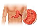 久坐族警惕胃食道逆流加剧