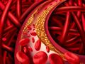 睡眠血压:血管风险的预后标志和预防治疗靶点