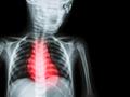 揭示地中海饮食降低机体心血管疾病风险的分子机制