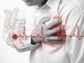 研究发现罕见的基因突变可能预防心脏病
