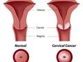 腹腔镜下宫颈癌手术坏处多?切勿因噎废食!