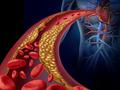 JAHA:脂肪组织中亚油酸与缺血性卒中