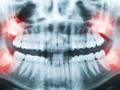 牙齿不好也要小心糖尿病?为什么?