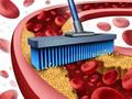 家庭血压变异性和亚临床动脉粥样硬化