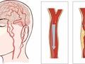 脑梗或许是拖出来的:3个症状,提醒你够久了