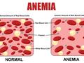动脉瘤性蛛网膜下腔出血后的贫血与不良结局和死亡相关