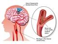 经导管主动脉瓣置换术后早期小叶血栓的中期随访