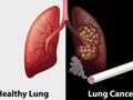 """规范肺癌诊治!""""肺癌网络公开课""""助力提升基层医疗服务能力"""