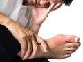 痛风坐着不动也会痛,教你4招减少发作机会