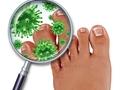辟謠丨警惕真菌感染引起皮膚病,這幾個真相你需要知道