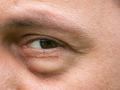 婆婆双眼睫毛内寄生大量螨虫