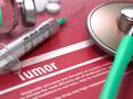 肿瘤专家王子平:化疗依然是治肿瘤的基础,免疫疗法替代不了!