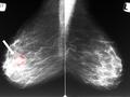 好端端的,为什么会得乳腺癌?医生列出以下几点