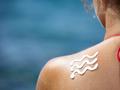 暑期晒伤患儿明显增多 孩子外出莫忘做好防晒