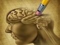 医生强调:有没有老年痴呆,这一个症状是明显标志!