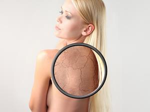 秋冬皮肤干燥起皮怎么办?