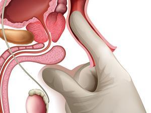 肛肠医院实拍6种痔疮清晰图