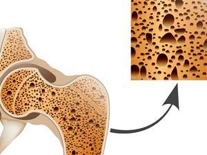 骨质疏松,骨质疏松误区,骨质疏松十大认知误区
