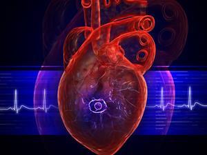 心肌缺血的症状危险吗,心绞痛