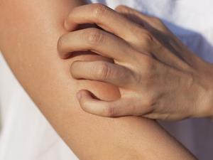 慢性荨麻疹该怎么治疗?