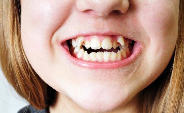 牙齿正畸不可不知的真相!