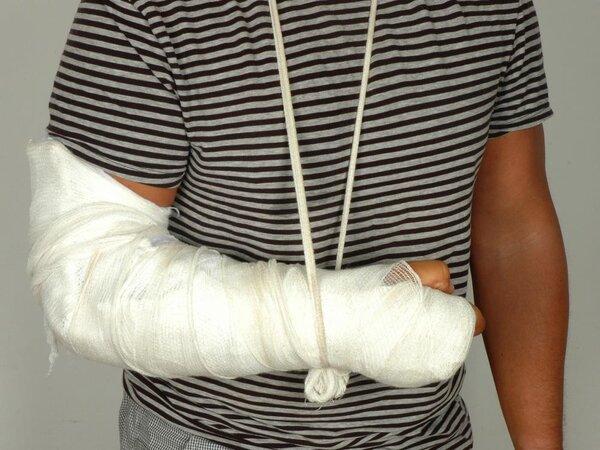 掰手腕骨折