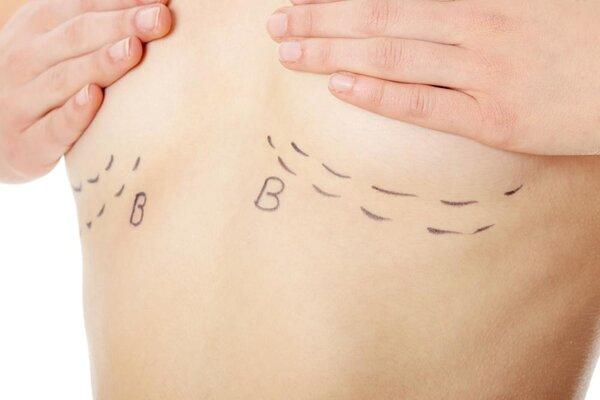 母乳喂养会造成胸部下垂是真是假?