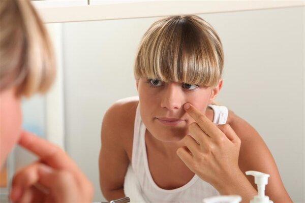 脸干燥过敏怎么办 如何应对脸干燥过敏问题