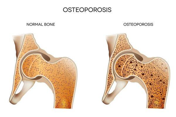 治疗前列腺癌容易发生骨质疏松 需要配合用强骨药