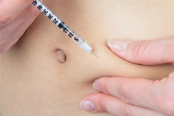 胆汁返流性胃炎对身体的影响有多大?