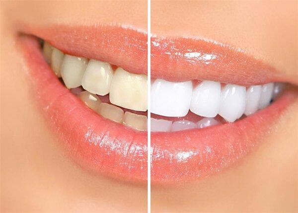 """怎么呵护洗完牙的""""脆弱""""牙齿?"""