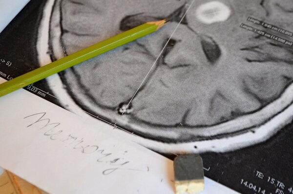 Neurology:中风后防痴呆?先从抑郁干预开始!
