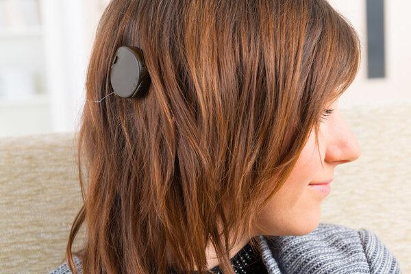 人工耳蜗植入治疗先天性耳聋患者