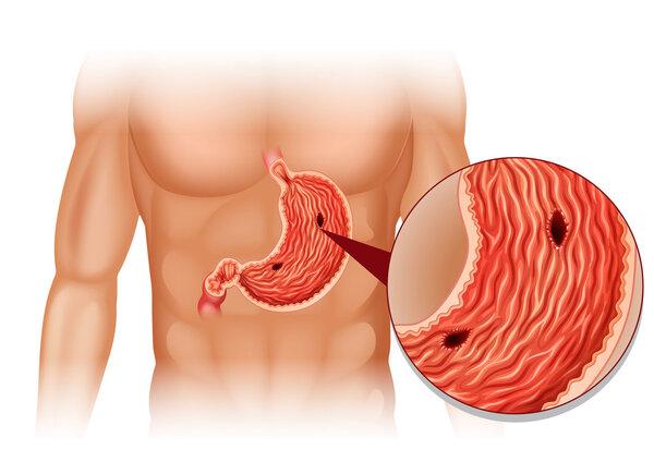 胃溃疡要吃药,但不能乱吃