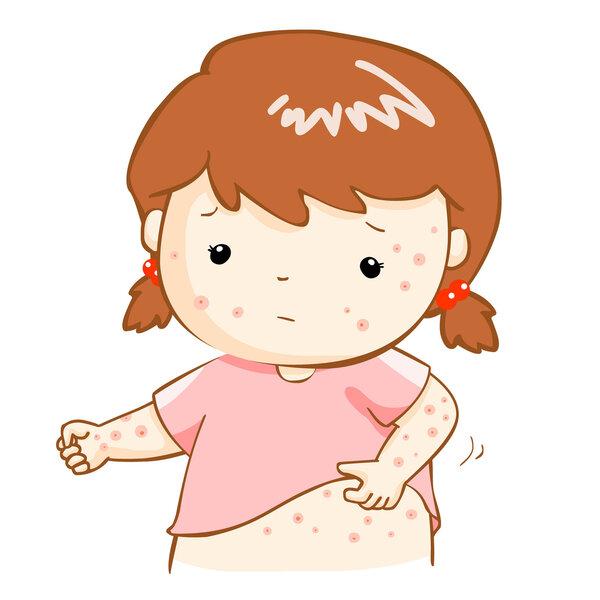 哪些食物能帮孩子预防过敏?