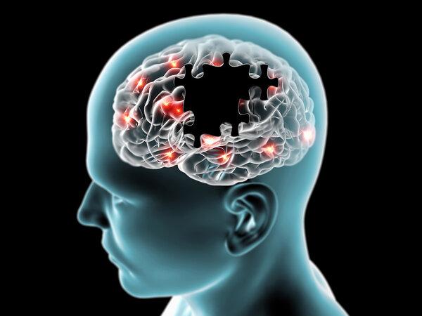 Neurology:肾脏功能不