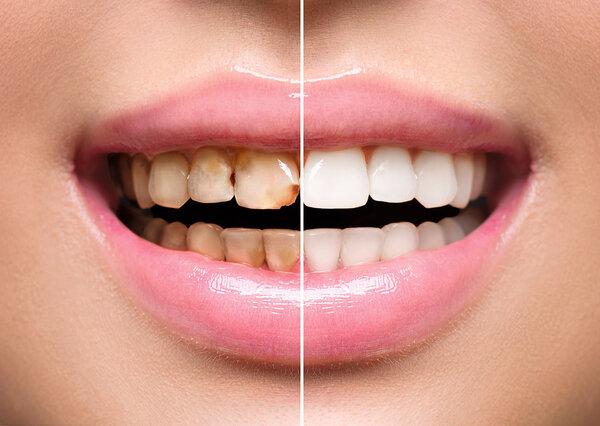 口腔微生物对身体健康的影响有多大?与风湿、