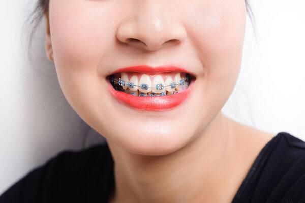 牙齿矫正的最佳年龄是多少岁?牙