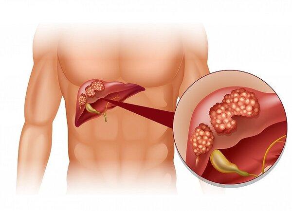 非酒精性脂肪肝患者肝细胞癌发病