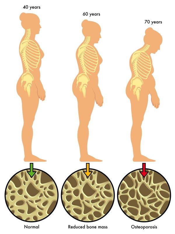 四大方法教你治疗骨质疏松